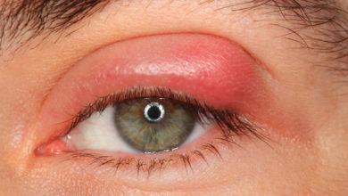 علاج الكيس الدهني في العين