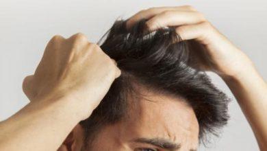علاج لقشرة الشعر