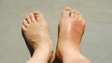 علاج تورم القدمين لمريض السكر
