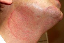 علاج التينيا بالليمون