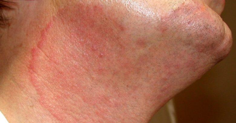 علاج التينيا بالليمون ونصائح هامة للوقاية منها