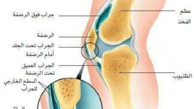 علاج الام الركبة