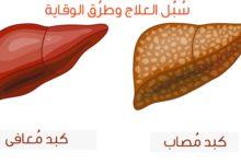 سبل العلاج وطرق الوقاية من دهون الكبد