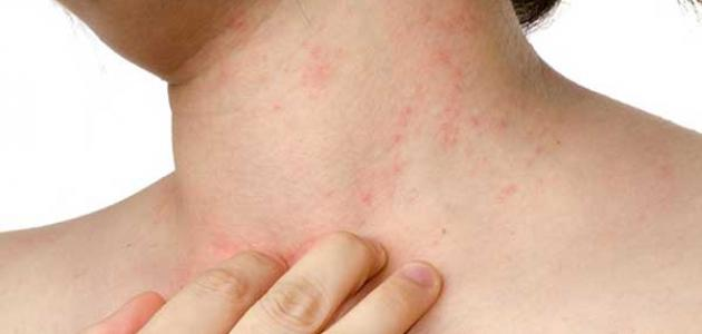 HYGI - TADINE هيجي-تادين لعلاج الحساسية والحكة الجلدية