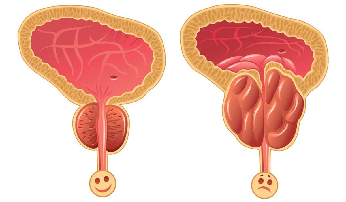 SILDOCARE لعلاج تضخم البروستاتا
