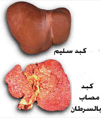 الفرق بين الكبد السليم و المريض