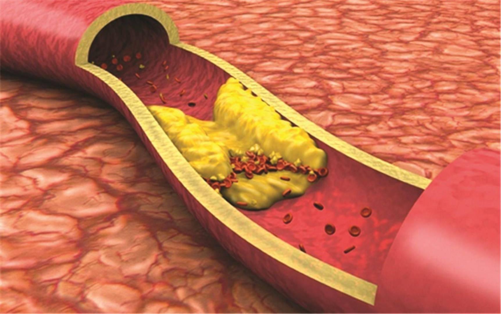 شكل الدهون في مجرى الدم