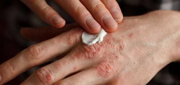 جزء من جلد اليد مصاب بالاكزيما