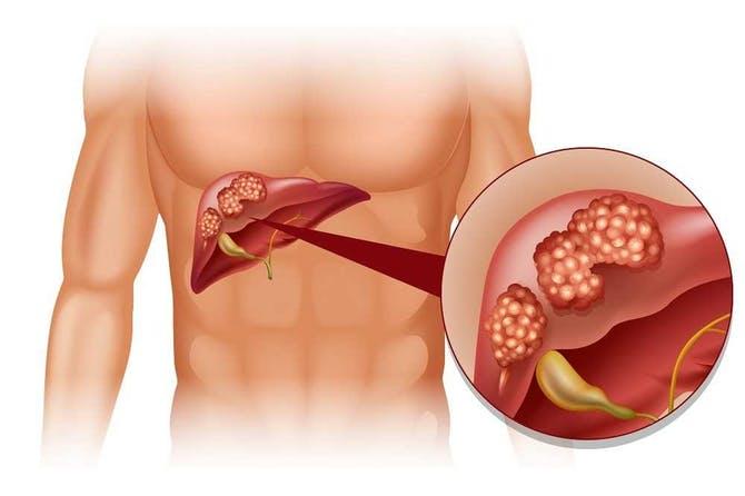 شكل الكبد المصاب بالسرطان