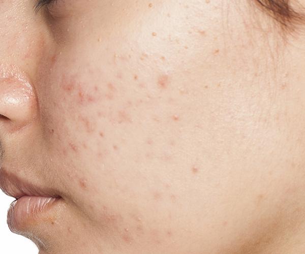 التقطير عقدة مجلس سبب ظهور الحبوب تحت الجلد في الوجه Myfirstdirectorship Com