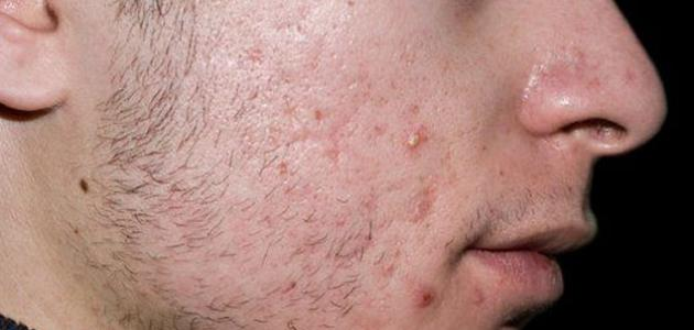 PIXIE ACNE لعلاج حبوب البشرة