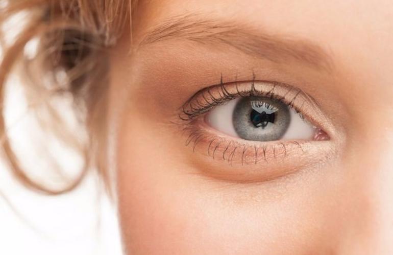 أسباب تورم العيون