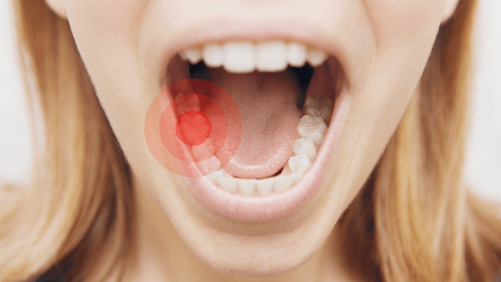 الوقاية من الم الأسنان