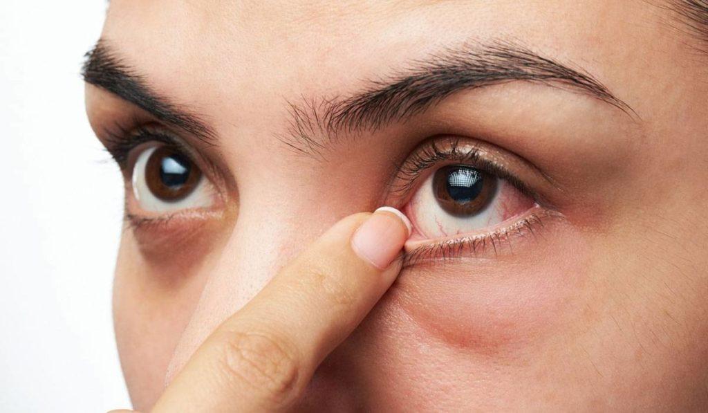 الوقاية من تورمات العين