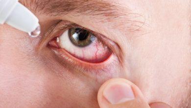 طرق علاج حساسية العين