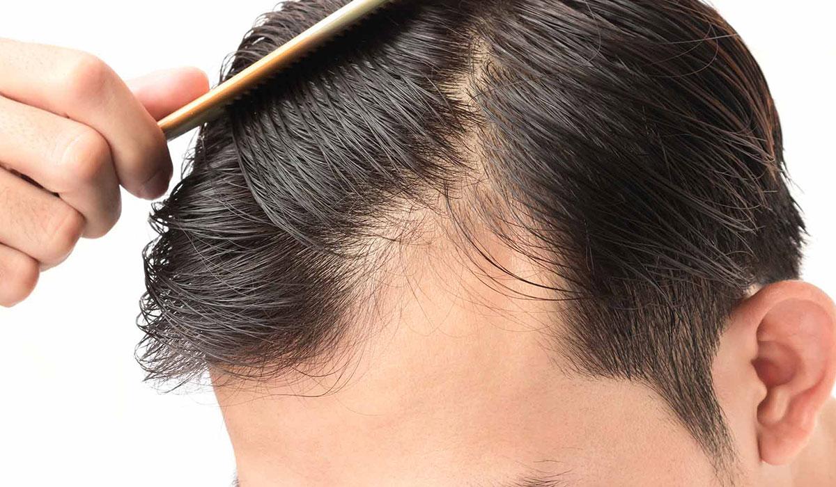 علاج الشعر