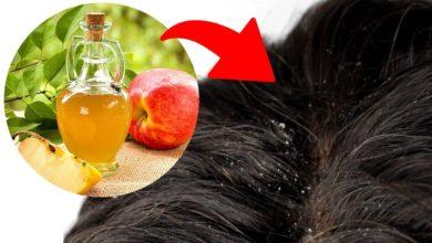 علاج قشرة الشعر بالخل