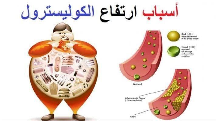 عوامل تؤدي الى ارتفاع نسبة الكوليسترول