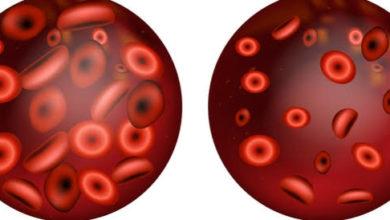 مشكلة فقر الدم