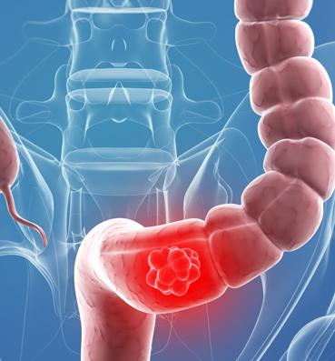علاج القولون الهضمي والغازات
