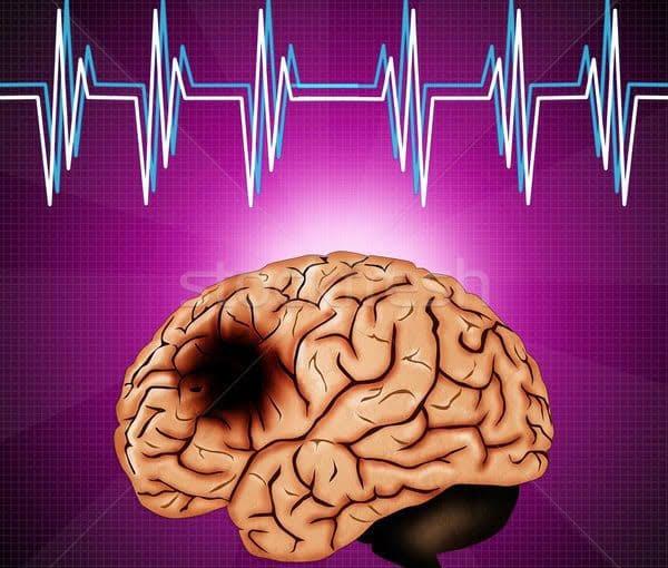 اعراض سرطان الدماغ وطرق التشخيص والعلاج