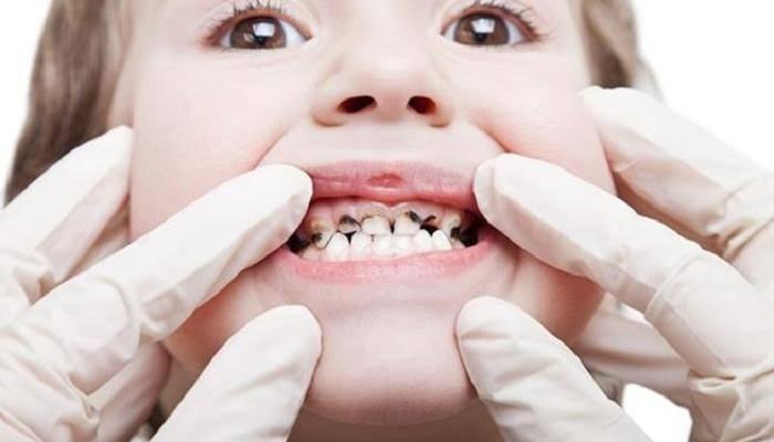 تسوس أسنان الأطفال من اضرار المشروبات الغازية