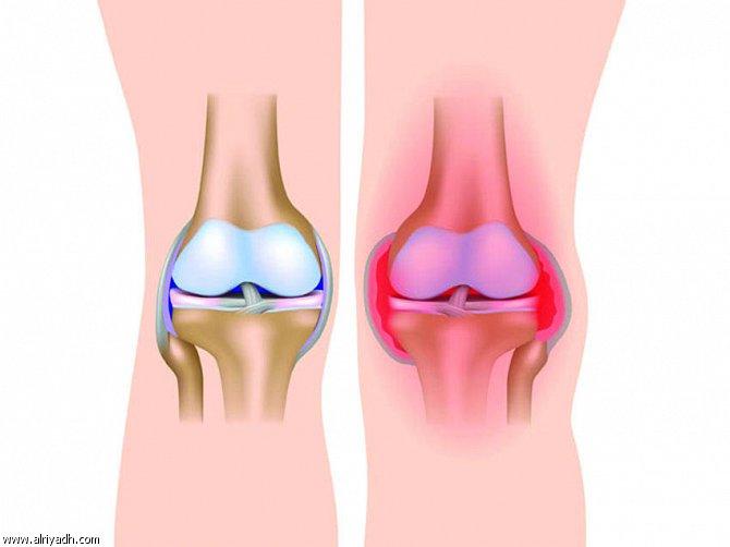 من اهم اعراض تورم الركبة احمرارها
