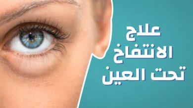 اسباب و علاج الانتفاخ تحت العين