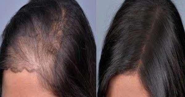 تساقط الشعر من اكثر المشاكل المحرجة التي يمكن ان تتعرض لها الفتاة