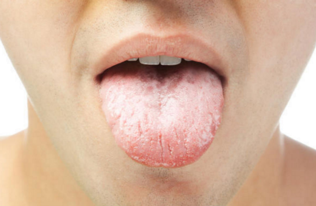 سرطان الفم قد يصيب اي جزء من اجزاء الفم