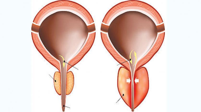 من اهم اعراض التهاب البروستاتا ظهور دم في البول والشعور بآلام اسفل البطن