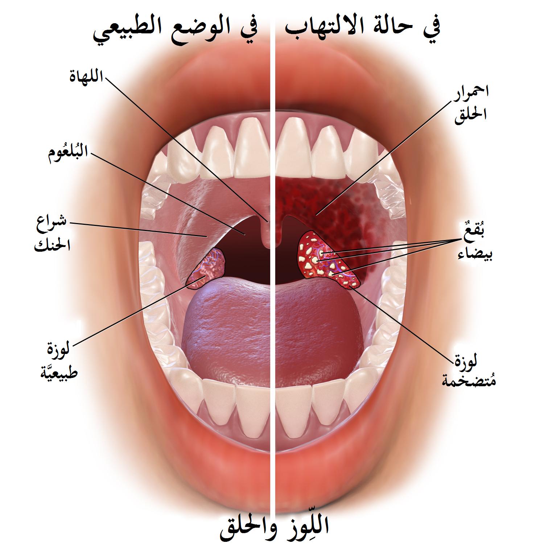 اسماء ادوية التهاب اللوزتين