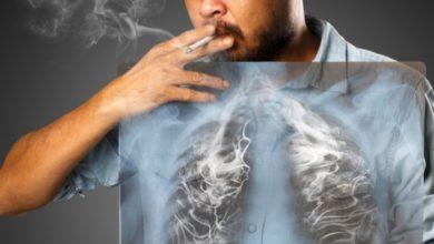 اعراض سرطان الرئة المتقدمة