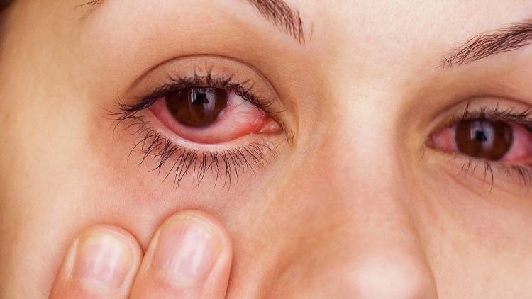 يمكن استعمال الدواء كذلك من اجل علاج حساسية العين