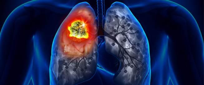 اعراض سرطان الرئة الحميد