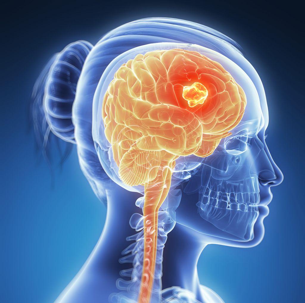 سرطان الدماغ العلاج والتشخيص
