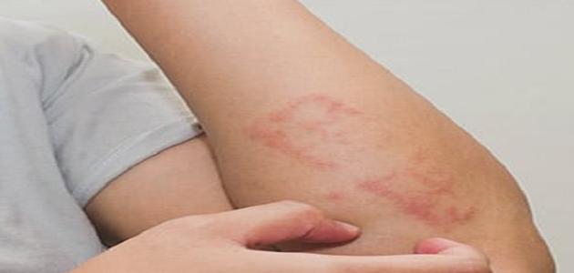 يعالج الكلاريتين العديد من الامراض الجلدية مثل الصدفية و الاكزيما