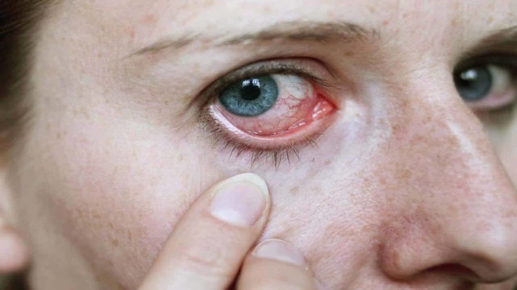 يمكن لدواء كلاريتين ايضا ان يعالج حساسية العين