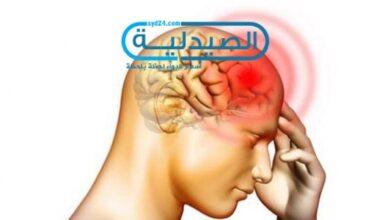 اسباب جلطة الدماغ