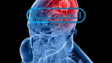 اسباب نزيف الدماغ وعلاجه