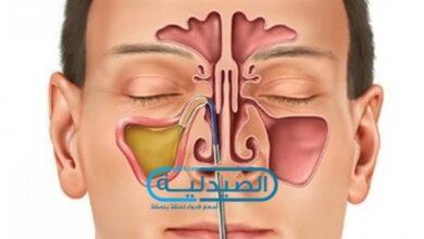 اسباب التهابات الجيوب الأنفية