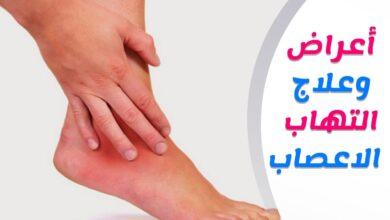 اعراض التهاب الاعصاب الطرفية في القدم