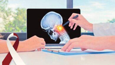 معلومات عن سرطان الرأس و الرقبة