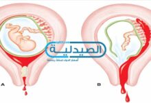 طرق الإجهاض في فترات الحمل المختلفة