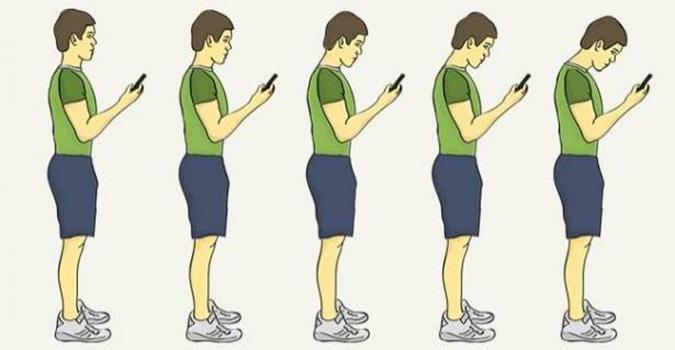 علاج تقوس الظهر بالصور عند الاطفال والبالغين وأسباب الاصابة به