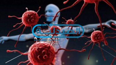 نسب الشفاء من السرطان