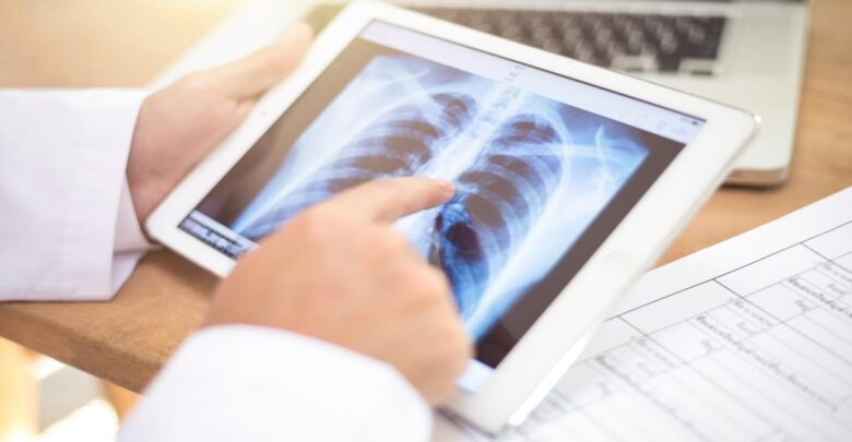 معلومات عن مرض سرطان الرئة