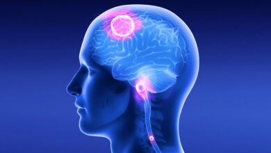 علامات الورم في المخ