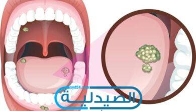 سرطان اللسان