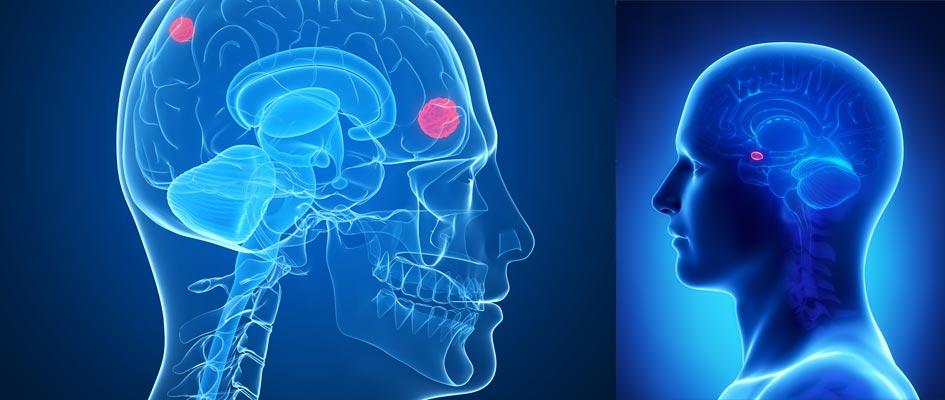 أنواع سرطان الرأس